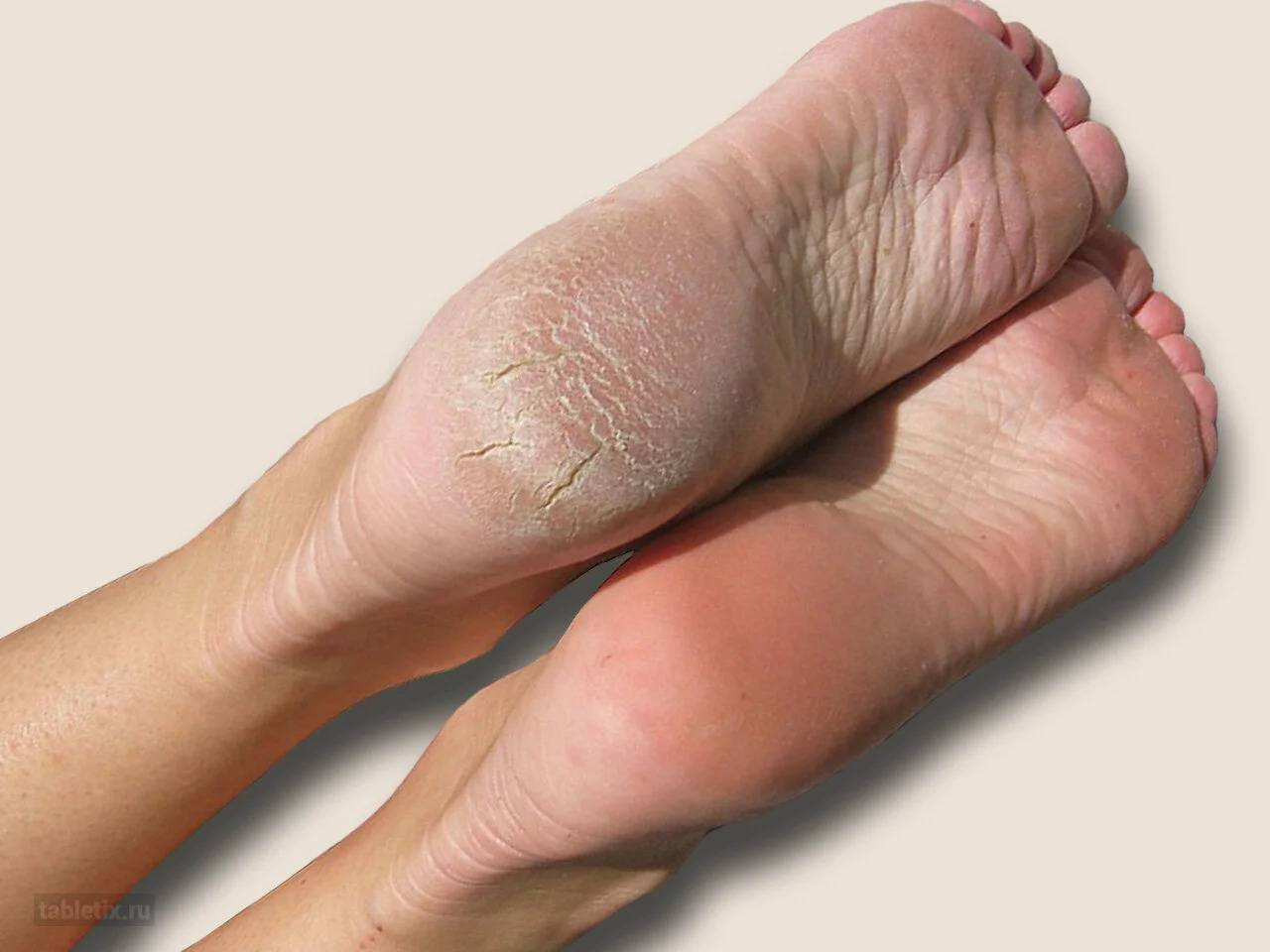 Самые эффективные средства для лечения сухих пяток и трещин в домашних условиях
