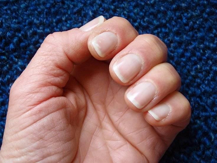 Что делать, если слоятся ногти на руках? причины и их устранение
