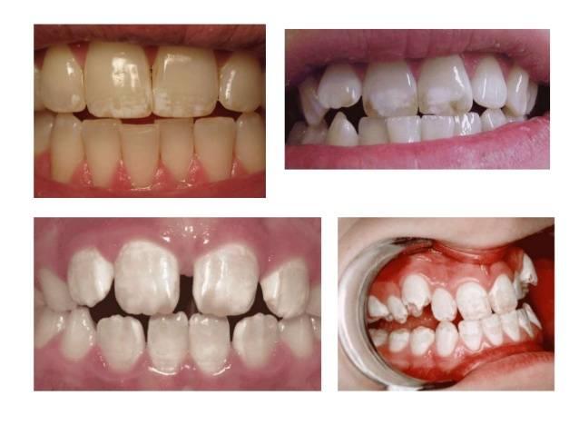 Особенности классификации и диагностики некариозных поражений твердых тканей зубов, лечение и профилактика заболеваний