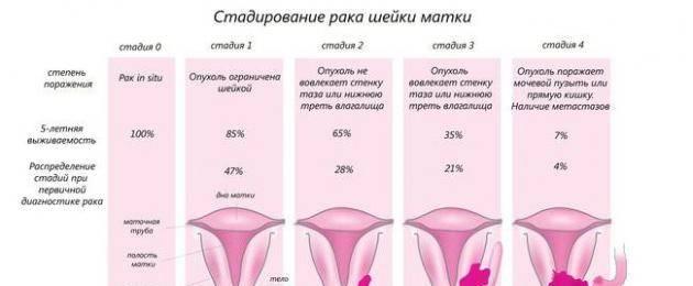 Лечится ли третья стадия рака шейки матки? сколько живут после лечения?