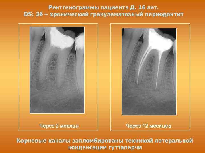 Лечение пульпита, периодонтита у детей