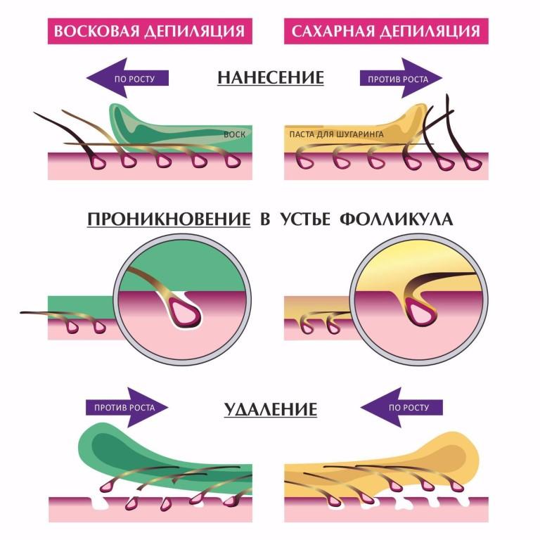 Что лучше и эффективнее шугаринг или восковая эпиляция: отличия, плюсы и минусы от процедур, эффект от эпиляции воском и шугаринга с отзывами и советами косметологов