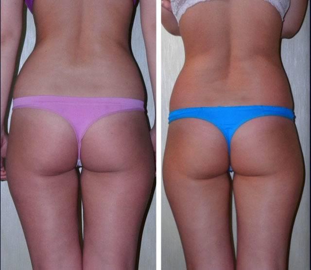 Виды и принцип действия вакуумных помп для увеличения груди