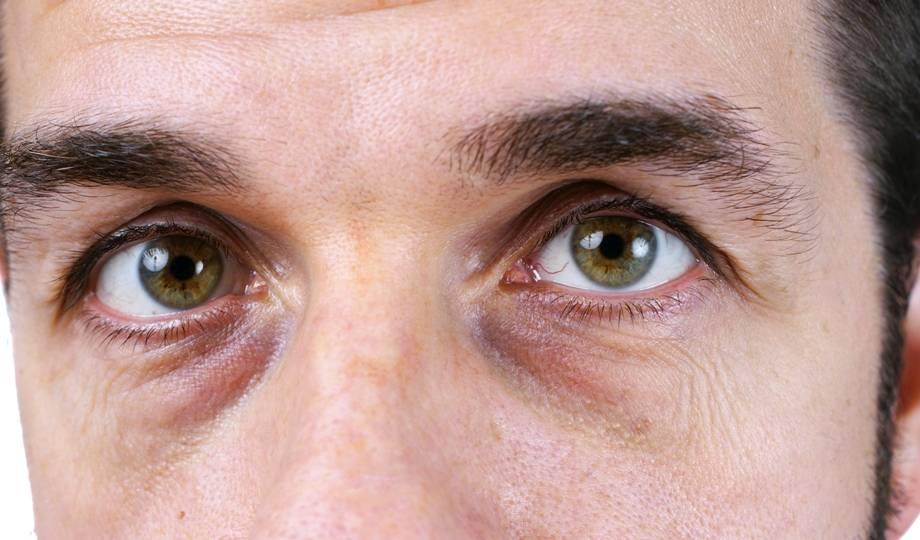 Мешки под глазами: стоит ли волноваться?