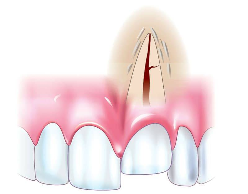 Вывих молочного зуба: лечение вколоченного вывиха молочного зуба у ребенка