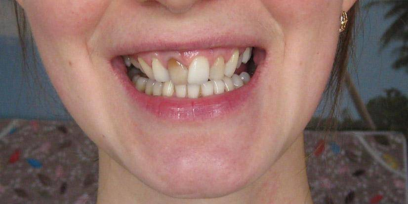 Можно ли лечить зубы, на которых установлены брекеты?