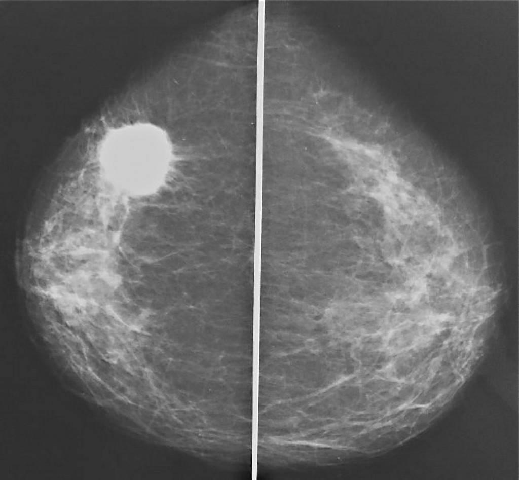 Узловая мастопатия молочной железы лечение