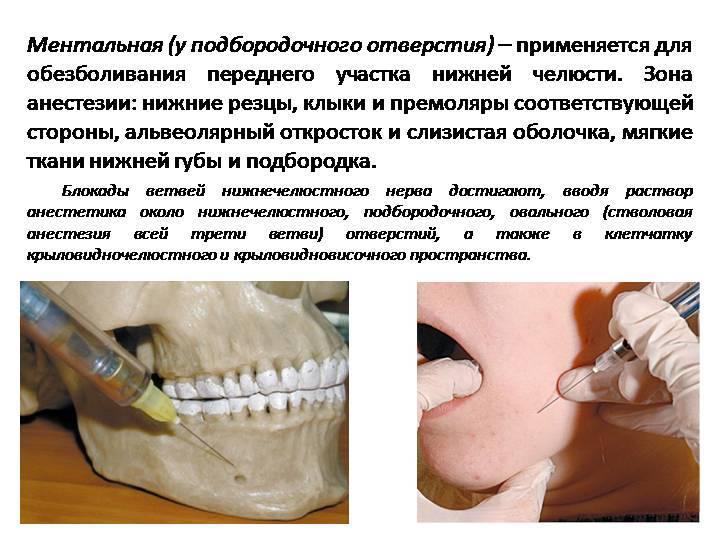 Аллергия на анестезию и другие последствия обезболивания в стоматологии