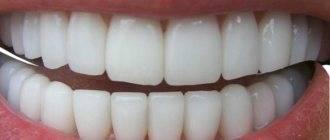 Питание при переломе челюсти видео