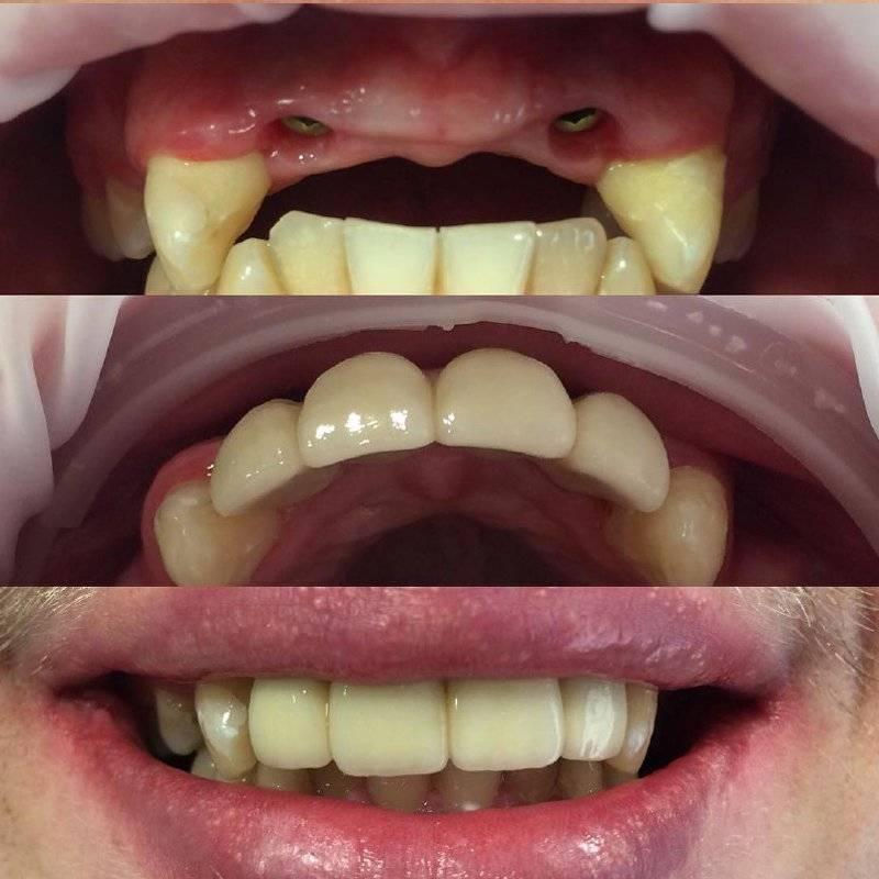 Треснула зубная коронка: причины и последствия проблемы