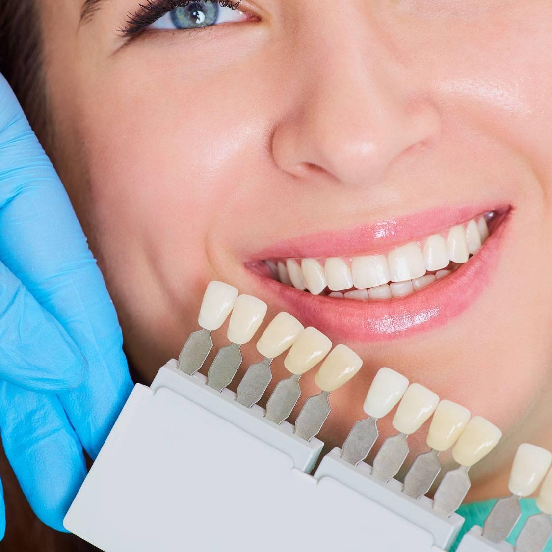 Безопасно ли делать отбеливание зубов в стоматологии. разбираемся, как не нанести вред своему здоровью