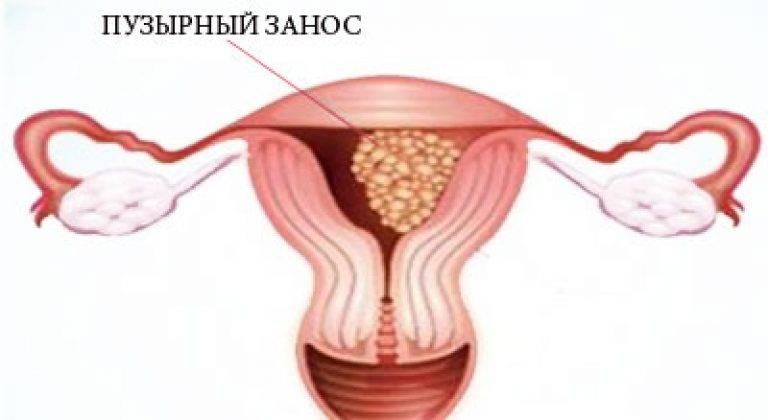 Что такое пузырный занос при беременности