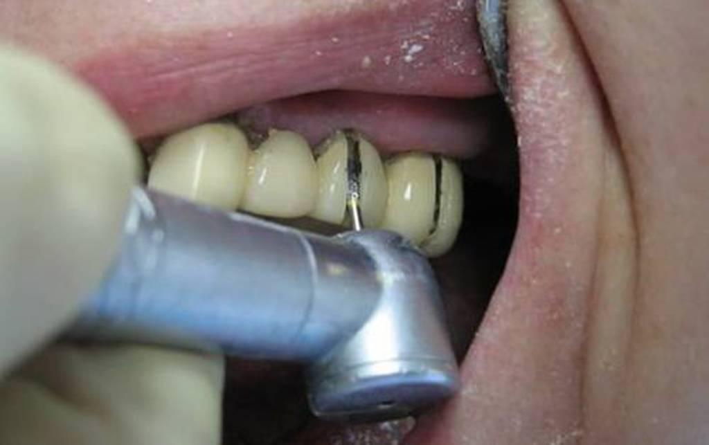 Почему болит зуб при нажатии на него?