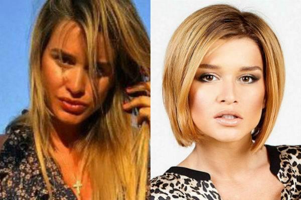 Как менялась ксения бородина: фото до и после пластики