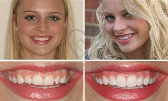 Как сделать зубы белыми и красивыми: смотрим на примере российских звезд (yapokupayu.ru)