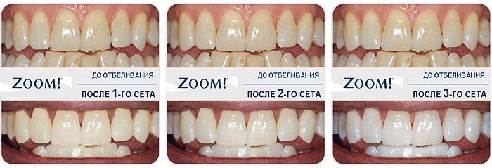Как отбелить зубы: полноценный гид