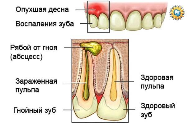 Гнойничок (абсцесс) на десне у ребенка: причины, симптомы, лечение