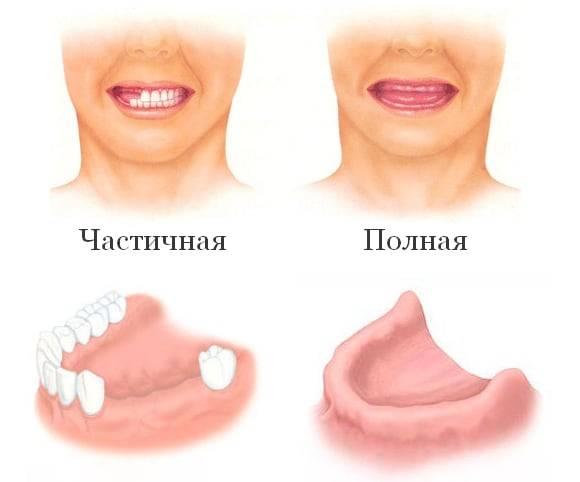 Чем опасно долгое отсутствие зубов и что такое адентия