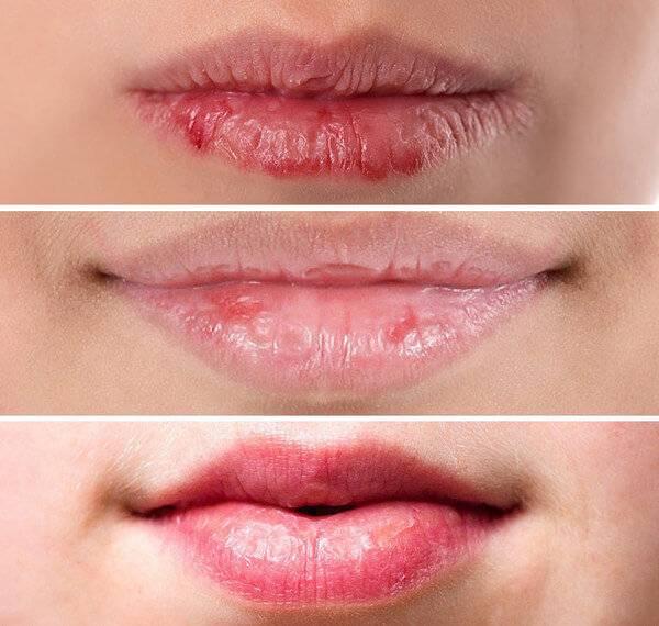 Почему трескаются губы до крови. причины и лечение, что делать, чем мазать
