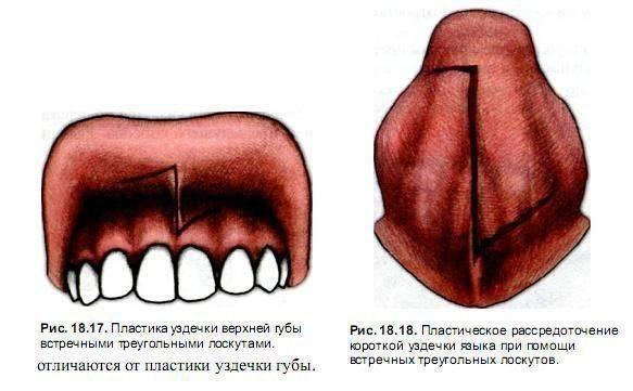Подрезание уздечки языка и губ