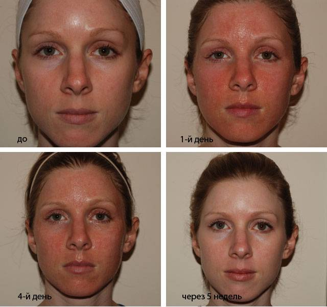Алмазная дермабразия — преображение кожи лица
