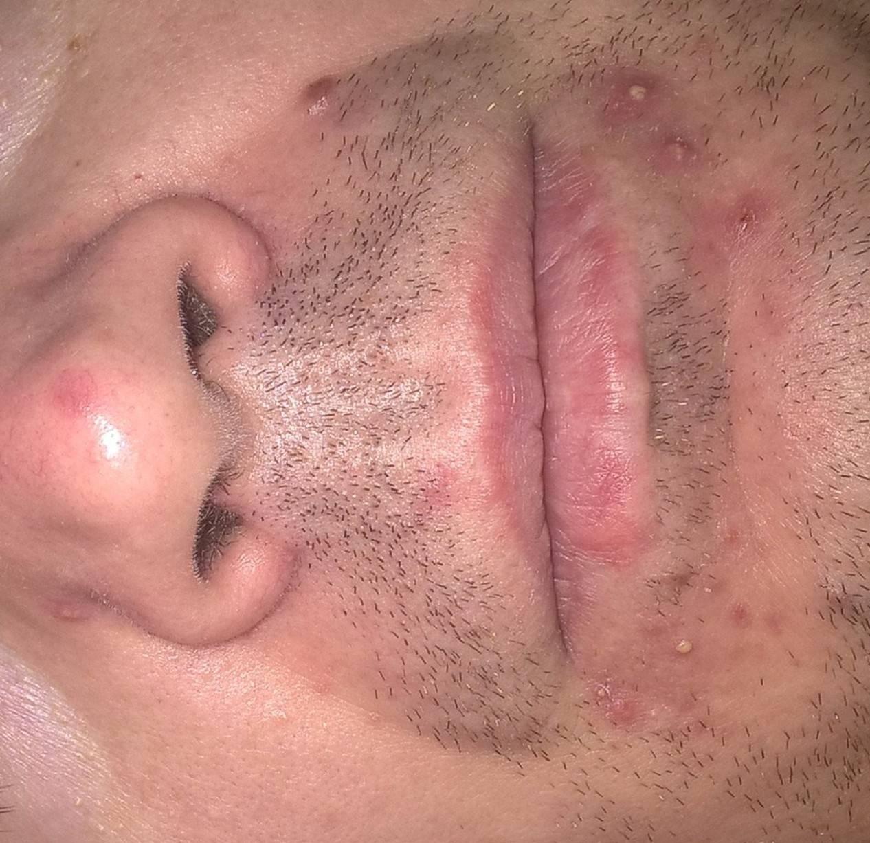 Периоральные прыщи вокруг рта