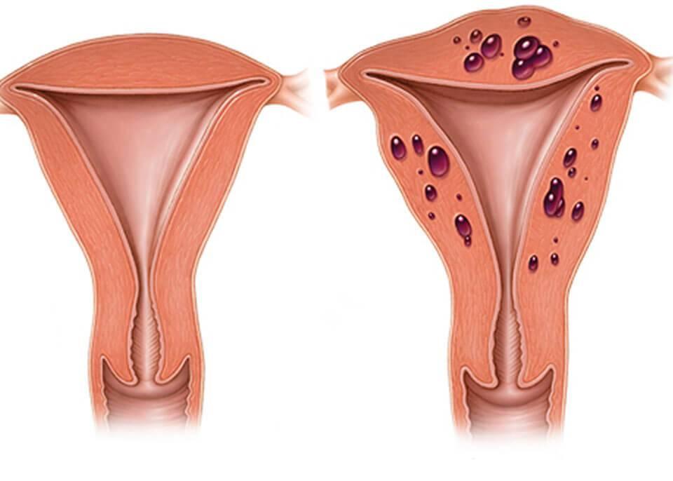 Можно ли забеременеть с эндометритом: вероятность зачатия при воспалении матки, риски при планировании беременности с эндометритом матки