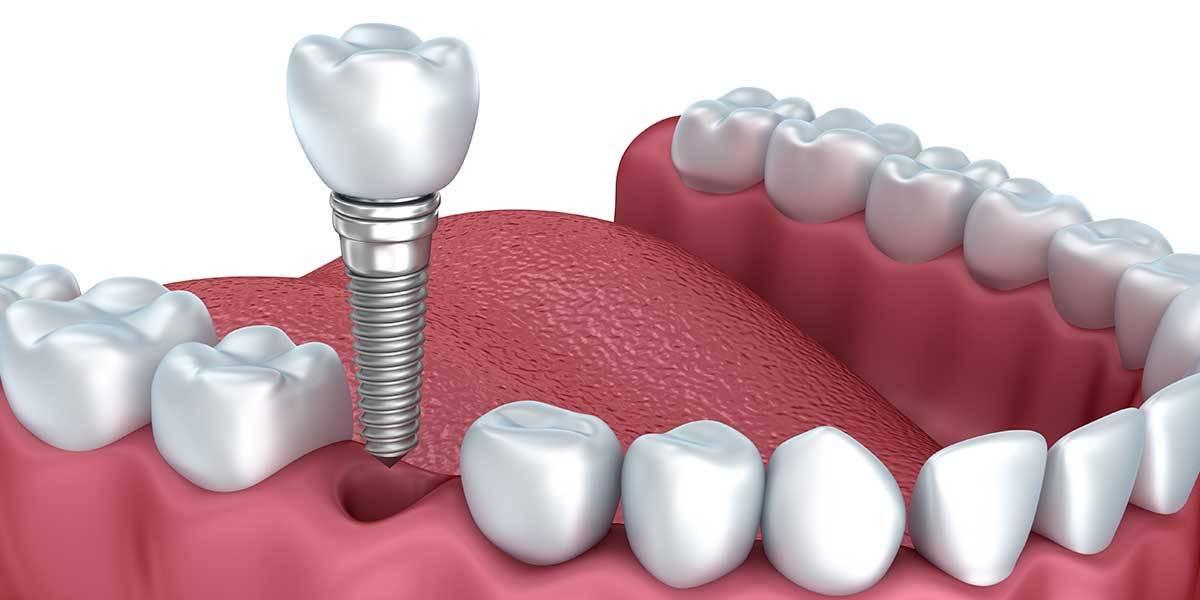 Особенности протезирования зубов при пародонтозе: импланты, коронки, виниры и другие протезы