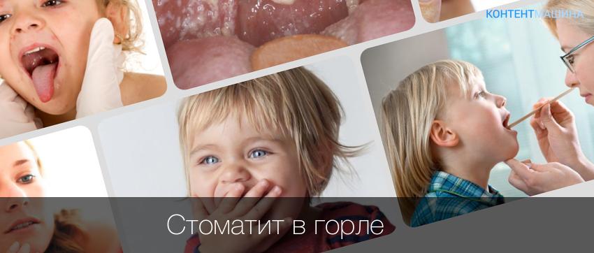 Стоматит у ребенка лечение в домашних условиях
