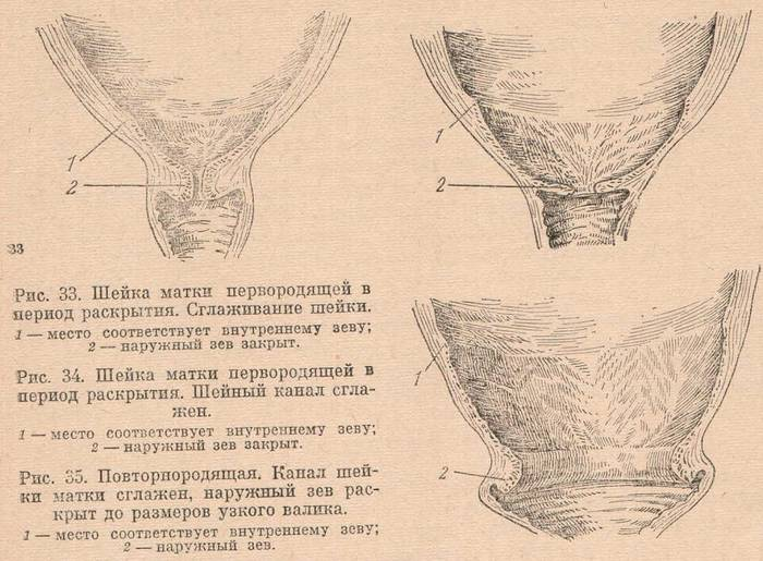Общие симптомы своевременного раскрытия шейки матки при родах