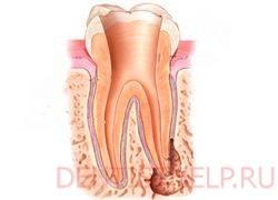 Метод депофореза в стоматологии — что это такое и когда оправдано назначение