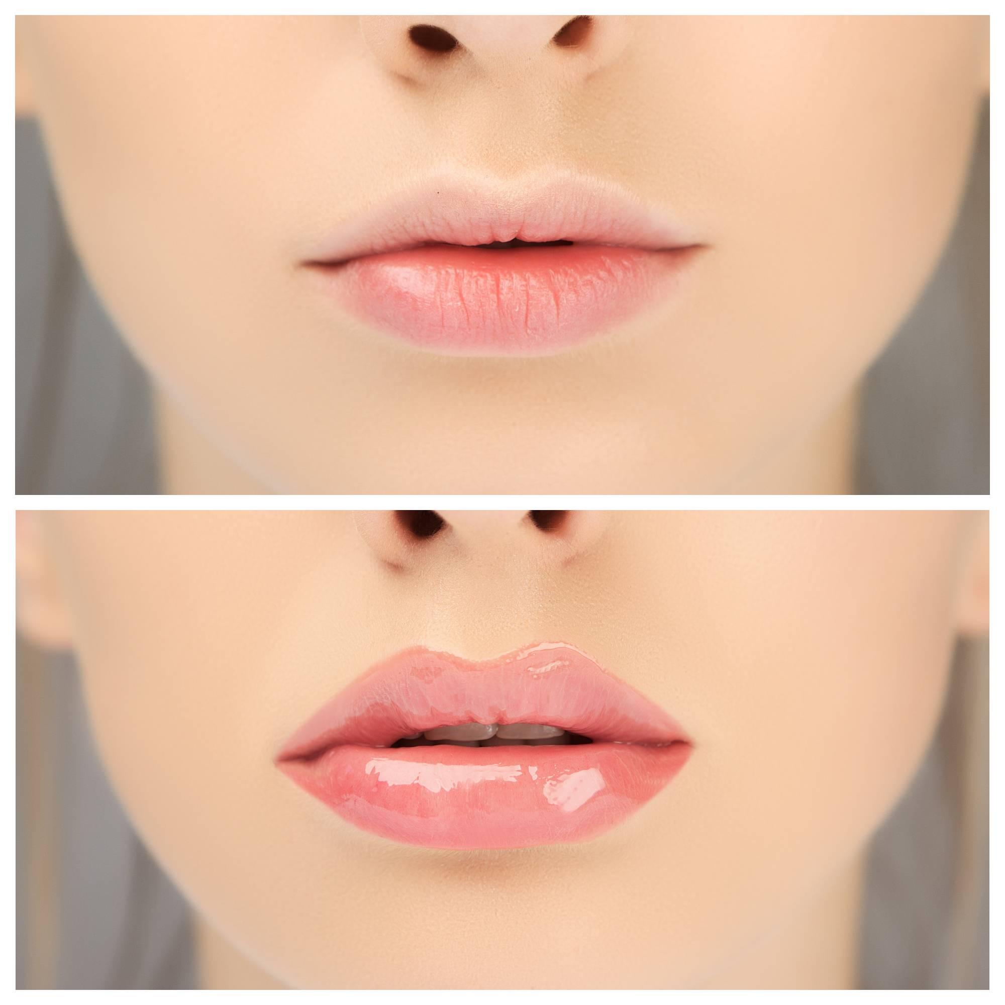 Как без операции увеличить губы в домашних условиях быстро и навсегда