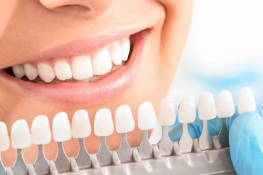 Профессиональное отбеливание зубов opalescence: плюсы и минусы