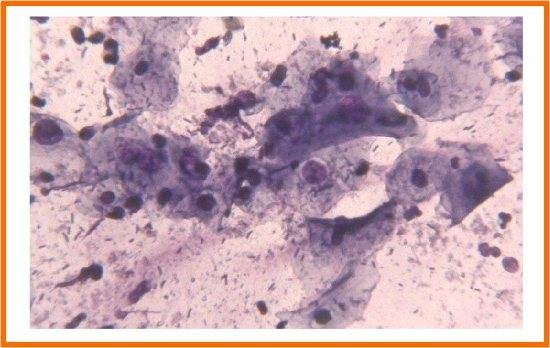 Что значит эстрогенный тип мазка в менопаузе