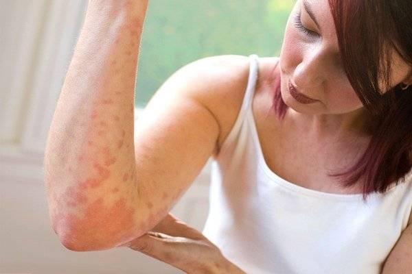 Особенности развития и лечения крапивницы на нервной почве