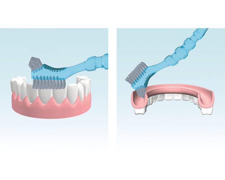 Гигиена ротовой полости после дентальной имплантации