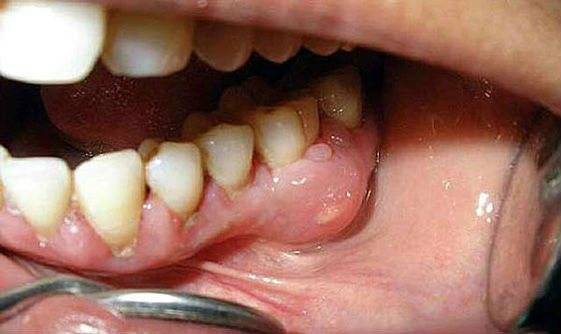 Гной под зубом в десне – причины возникновения, диагностика, лечение