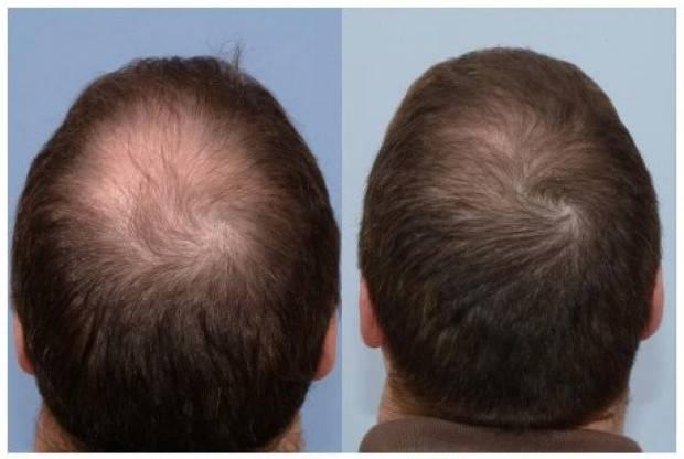 Климакс у женщин выпадение волос лечение