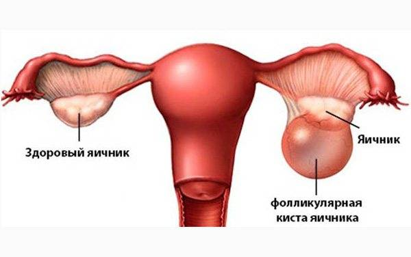 Функциональные кисты яичника: симптомы, диагностика и лечение