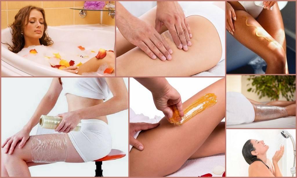 Обертывание от целлюлита с кремом капсикам на бедрах, ягодицах, животе. эффективные рецепты в домашних условиях