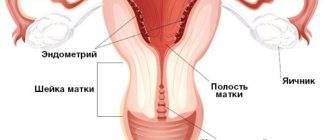 Причины увеличения матки перед критическими днями
