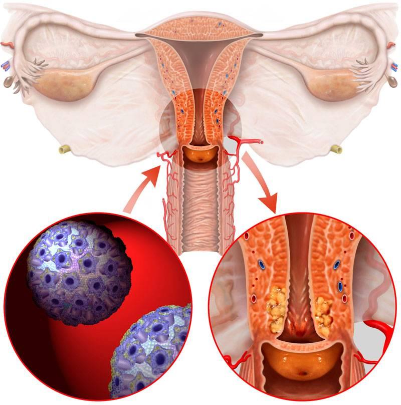 Инвазивный рак шейки матки