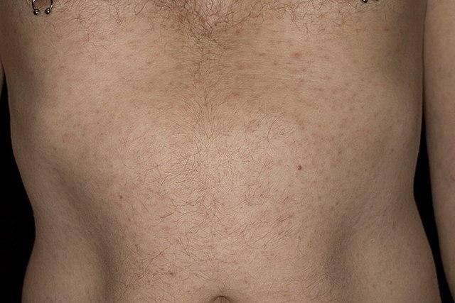 Сифилис на половых органах — симптомы и лечение