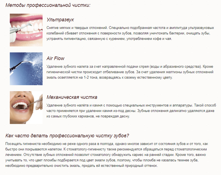 Как сохранить результат профессиональной чистки зубов?