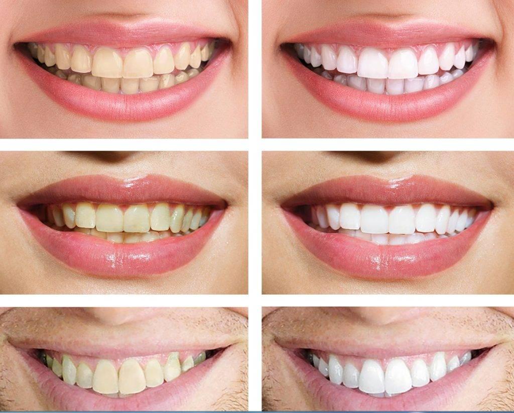 Опасно ли отбеливание зубов в домашних условиях: мнение стоматолога