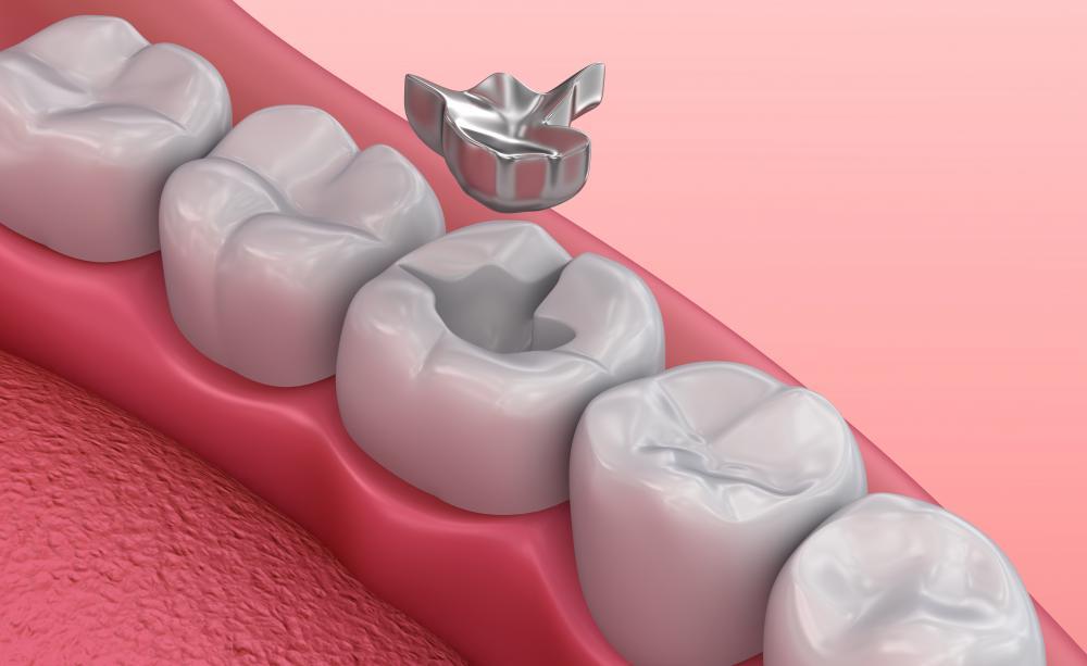 Крепление зубных протезов при полном, или частичном отсутствии зубов