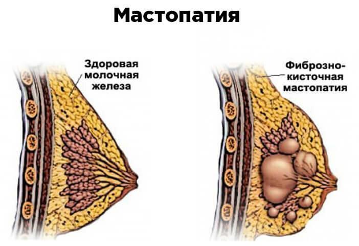 Заболевания молочной железы у женщин — как распознать патологию?
