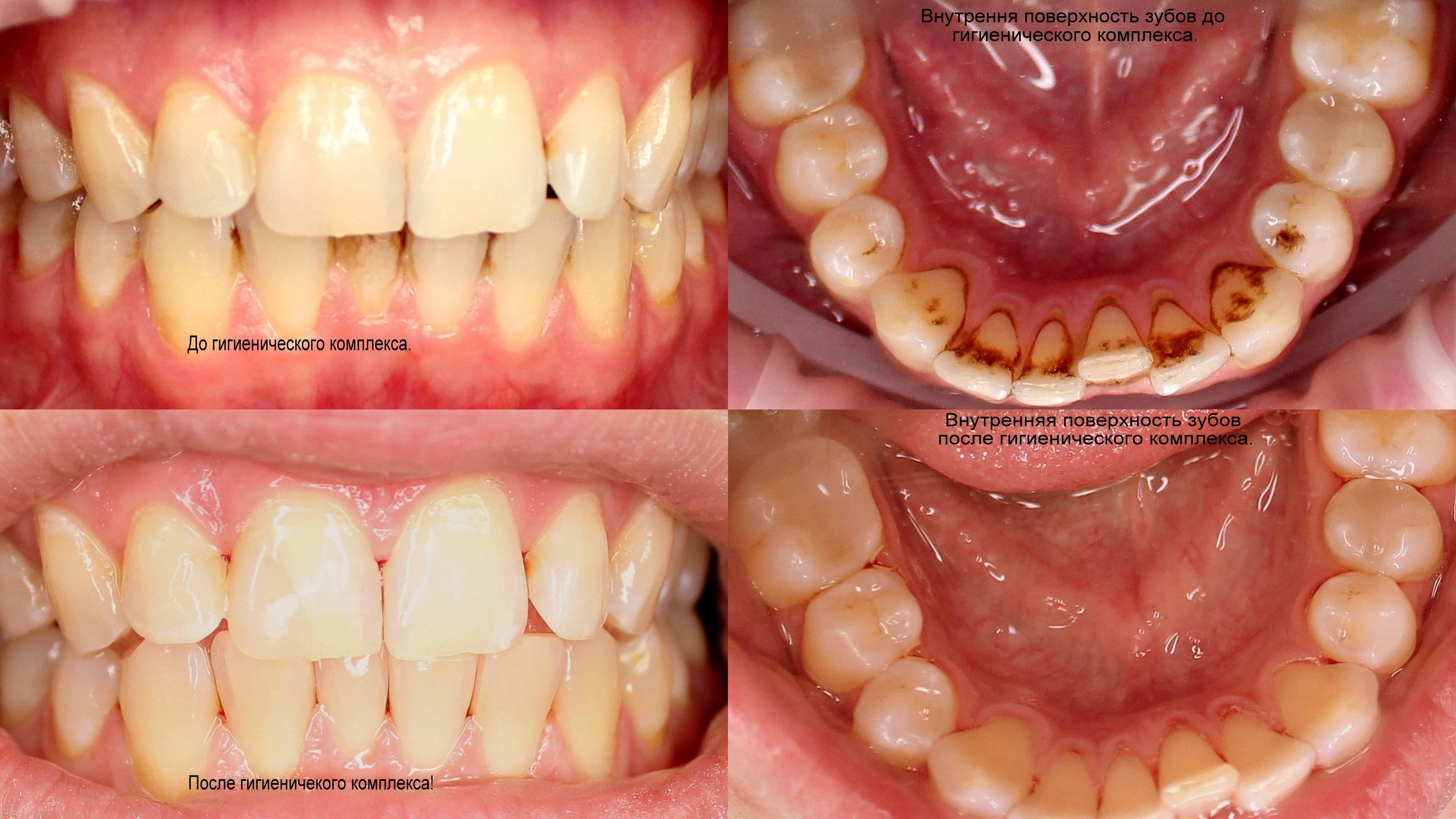 Рекомендации после чистки зубов у стоматолога