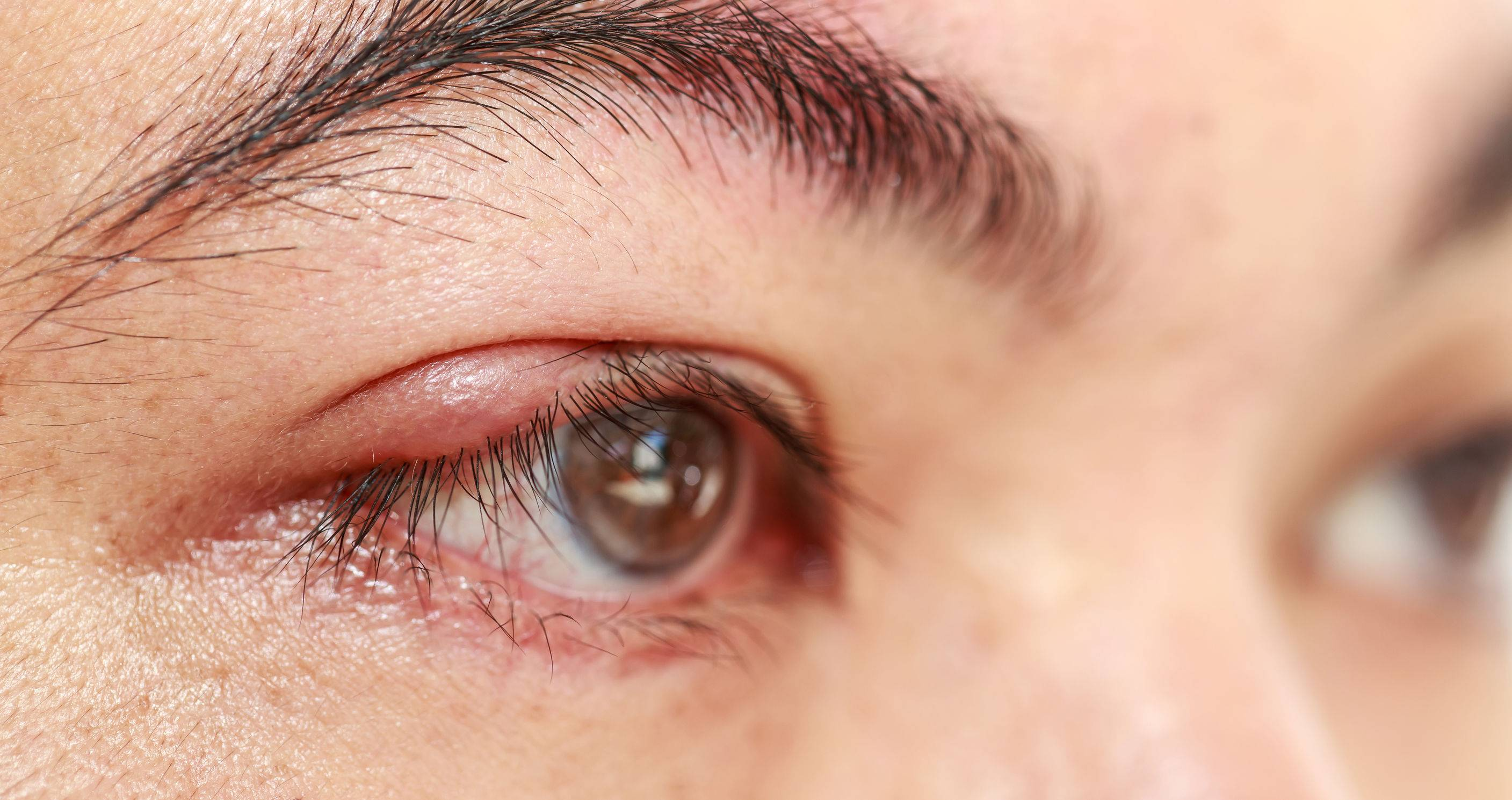 Воспаление века глаза: симптомы и лечение