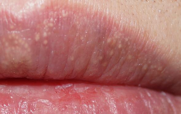 Белые точки на губах, мелкие прыщики. причины высыпания, лечение гранул фордайса